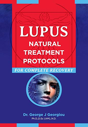 Lupus: Natural Treatment Protocols for Complete Recovery