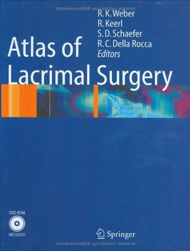Download Atlas of Lacrimal Surgery Pdf