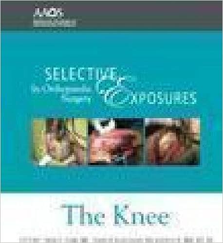 Lue kirjoja verkossa ilmaiseksi ilman ladattavia kirjoja Selective Exposures in Orthopaedic Surgery: The Knee 2 in Finnish PDF ePub