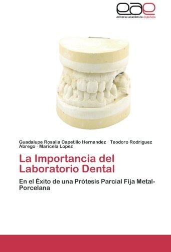 La Importancia del Laboratorio Dental: En el xito de una Prtesis Parcial Fija Metal-Porcelana (Spanish Edition)