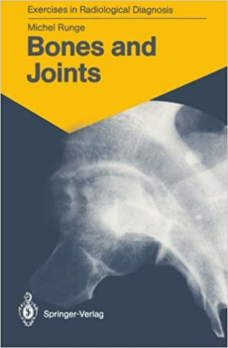 Bones and Joints: 170 Radiological Exercises for Students