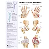 Understanding Arthritis, Anatomical Chart Company Staff, 1587793865