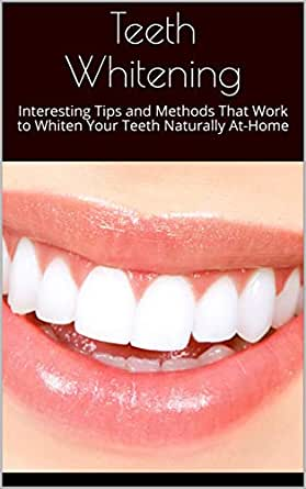 Teeth Whitening Interesting Tips And Methods That Work To Whiten