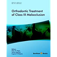 Orthodontic Treatment of Class III Malocclusion