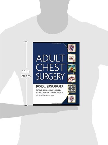 Adult Chest Surgery - http://medicalbooks.filipinodoctors.org