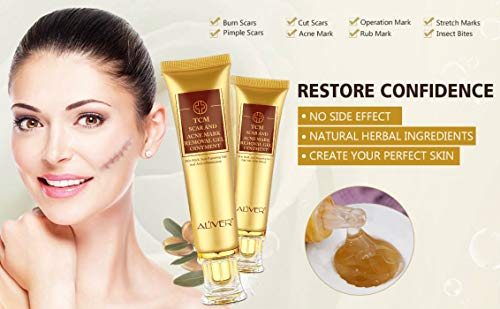 TCM Scar and Acne Marks Removal Cream Skin Repair Scars