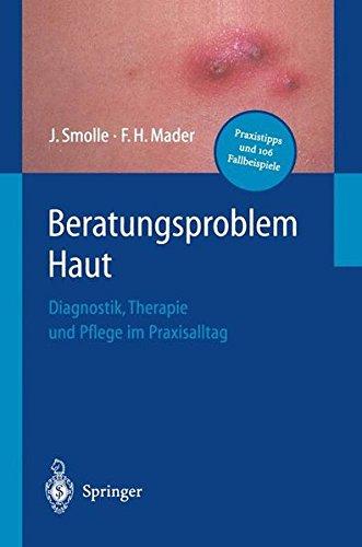 Beratungsproblem Haut: Diagnostik, Therapie und Pflege im Praxisalltag