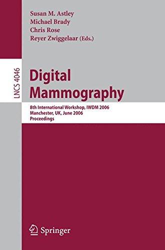 Digital Mammography: 8th International Workshop, IWDM 2006, Manchester, UK, June 18-21, 2006, Proceedings (Lecture Notes