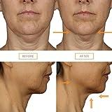 Clarisonic Clarisonic Smart Anti-Aging 3D Face