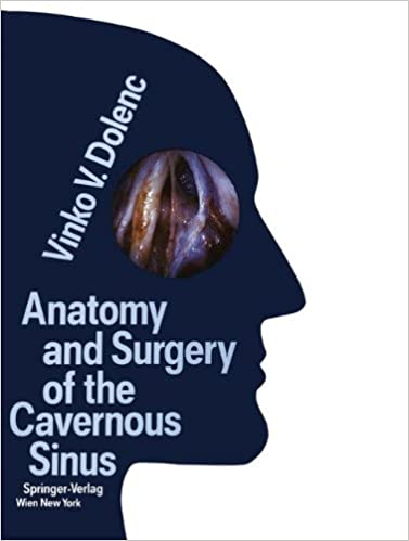 Anatomy And Surgery Of The Cavernous Sinus 9783709174425 Medicine