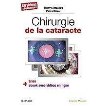 Chirurgie de la Cataracte: 80 Vidéos Séquencées