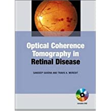 Optical Coherence Tomography in Retinal Disease