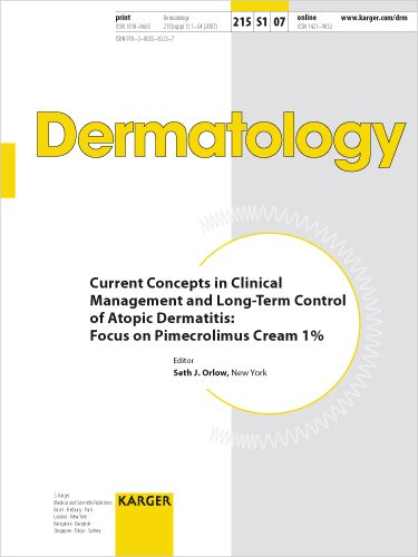 Current Concepts in Clinical Management and Long-Term Control of Atopic Dermatitis: Focus on Pimecrolimus Cream 1% (Best Treatment For Hives On Face)