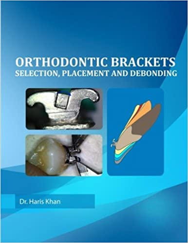 Orthodontic Brackets: Selection, Placement and Debonding