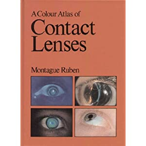 A Colour Atlas of Contact Lenses and Prosthetics
