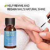 Evagloss Natural Nail Repair Solution - for Toenail and Fingernail Fungus, Restores Discolored and Damaged Nails