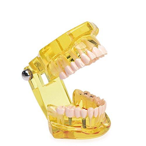Annhua Transparent Dental Disease Teeth Model Removable Tooth Teaching Model Tools for Dentist, Dental classes, Teeth Learner (Yellow)