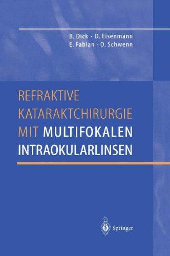 Refraktive Kataraktchirurgie mit multifokalen Intraokularlinsen