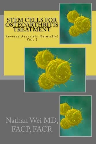 Stem Cells for Osteoarthritis Treatment: An easy to understand