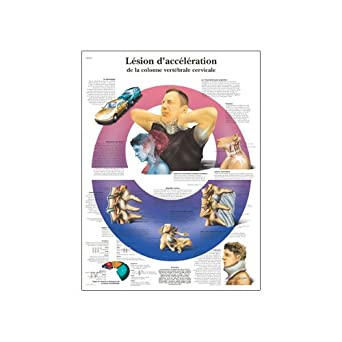 Poster Size 20 Width x 26 Height Poster Size 20 Width x 26 Height VR2761L 3B Scientific Lesion Dacceleration De La Colonne Vertebrale Cervicale Anatomical Chart Acceleration Injury To The Cervical Spine Anatomical Chart, French