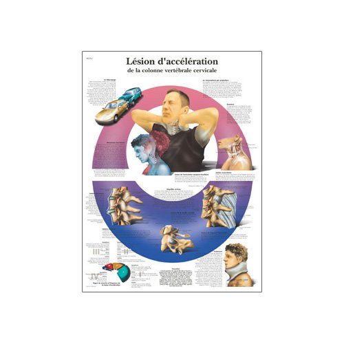 3B Scientific Lesion D'acceleration De La Colonne Vertebrale Cervicale Anatomical Chart (Acceleration Injury To The Cervical Spine Anatomical Chart, French), Poster Size 20