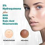 Ebanel Dark Spot Remover for Face 2% Hydroquinone