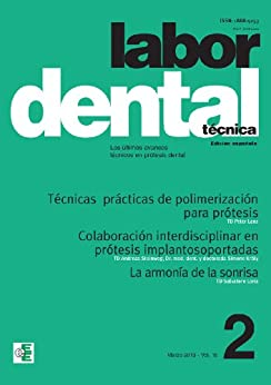 Labor Dental Técnica 2-2013 (Labor Dental Técnica vol.16) (Spanish Edition)