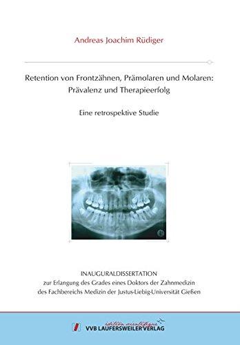 Retention von Frontzähnen, Prämolaren und Molaren: Prävalenz und Therapieerfolg: Eine retrospektive Studie (Edition Scientifique)