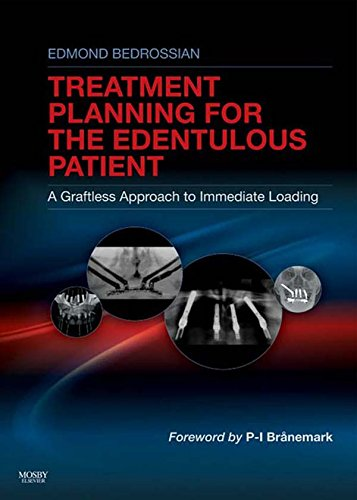 Download Implant Treatment Planning for the Edentulous Patient Pdf