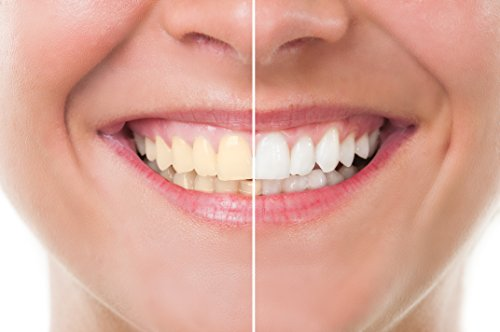 Teeth Whitening Kit Advanta Supplements