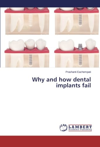 Download Why and how dental implants fail pdf