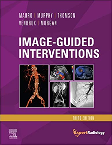 Image-Guided Interventions E-Book: Expert Radiology Series, 3rd Edition