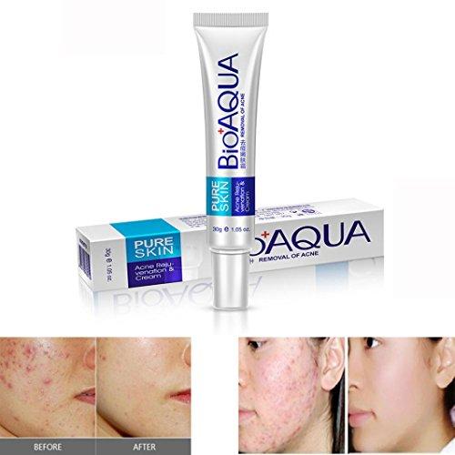 Anti Acne Removal Cream,Kemilove Effective Face Skin Care Removal Cream Acne Spots Scar Blemish Marks Treatment (Acne Healing Cream)