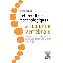 DÉFORMATION MORPHOLOGIQUE DE LA COLONNE VERTÉBRALE