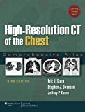 img - for High-Resolution CT of the Chest: Comprehensive Atlas book / textbook / text book