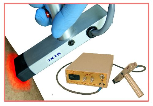 SDL90ec Epidermal Contact Laser for Hair Removal, Skin Resurfacing, Tattoo Erasure by Avance (Image #2)