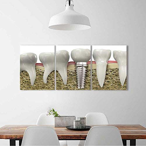 L-QN 3 Piece Wall Art Painting Frameless Normal teeth dental implant Posters Wall Decor Gift W24 x H36 x 3pcs (Best Dental Implants Brands)