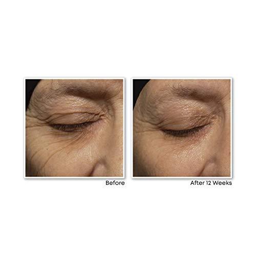 RoC Retinol Correxion Deep Wrinkle Anti-Aging Retinol Night Cream, 1 Ounce
