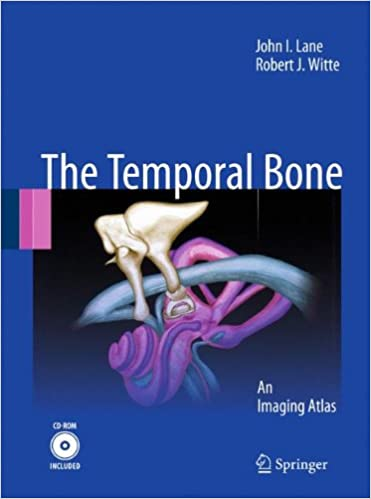 Anatomy of the temporal bone: how to visualize anatomic labels