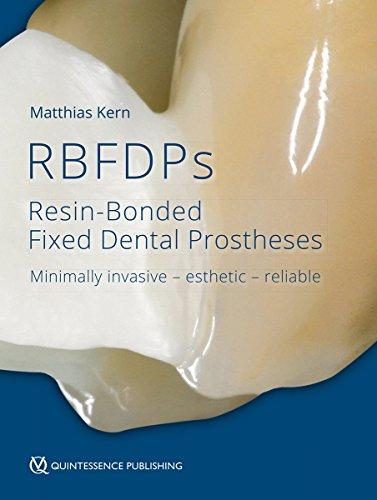 Resin-Bonded Fixed Dental Prostheses: Minimally invasive - esthetic - reliable