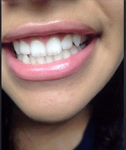 Teeth Whitening Pen Tooth Brightening Pen Cleaner Brush Beauty Blanqueador Dental by Teeth Whitening (Image #1)
