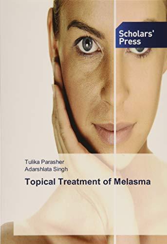 Topical Treatment of Melasma