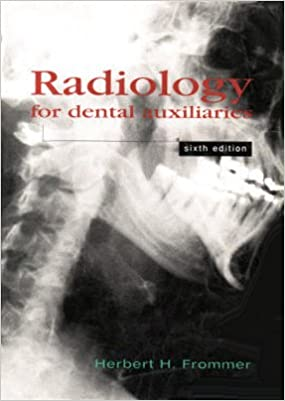 Radiology for Dental Auxiliaries: 9780815132295: Medicine & Health