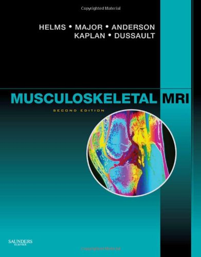Musculoskeletal MRI, 2e by Brand: Saunders