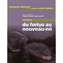 Imagerie: du Foetus Au Nouveau-né