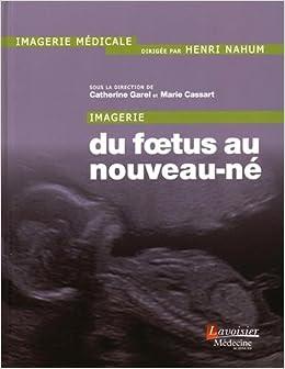 Imagerie foetus nouveau