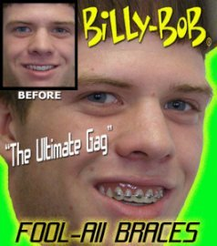 Billy Bob Braces Teeth Ugly Betty Novelty April Fools Gag Joke - Fake Braces For Teeth