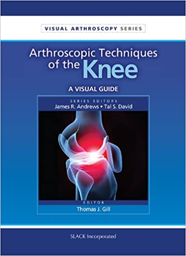 Buy Arthroscopic Techniques of the Knee: A Visual Guide (Visual