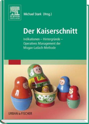 Der Kaiserschnitt: Indikationen. Hintergründe. Operatives Management der Misgav-Ladach-Methode