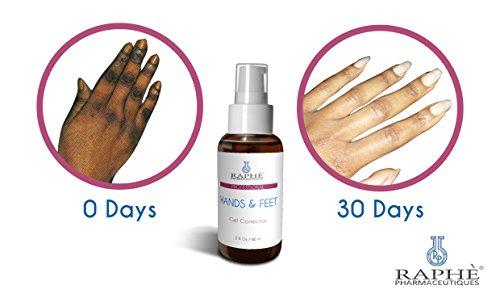 Hands N Feet Gell Corrector For Hydroquinone Damaged